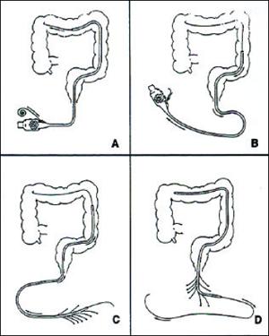 colon Manometry image, colon, motility catheter, colonoscope